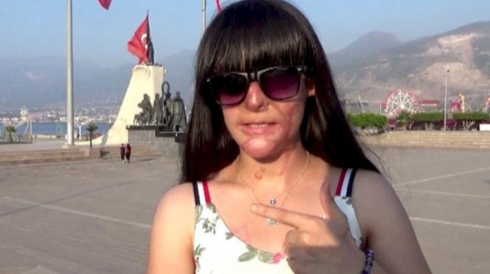 Yüzüne Asit Atan Saldırganı Affeden Berfin: Pişmanım