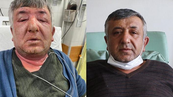 Ankara'da Yüzüne Dezenfektan Sürdü: Bu Hale Geldi!