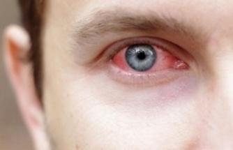 Adenovirüs Nedir? Adenovirüs Belirtileri Neler? Nasıl Bulaşır?