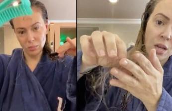 """""""Saç Dökülmesi Koronavirüsle İlişkili Olabilir"""""""